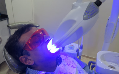 Philips Zoom for Teeth Whitening